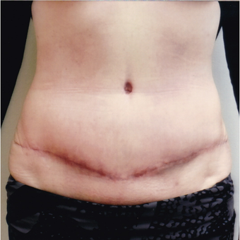 45-54 year old woman treated with Tummy Tuck after 3458327