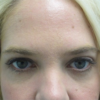25-34 year old woman treated with Restylane after 2461195