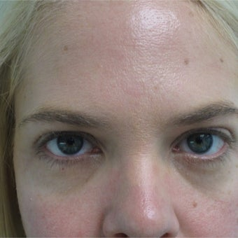 25-34 year old woman treated with Restylane before 2461195