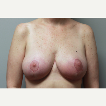 35-44 year old woman treated with Breast Reduction after 3652300