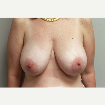 35-44 year old woman treated with Breast Reduction before 3652300