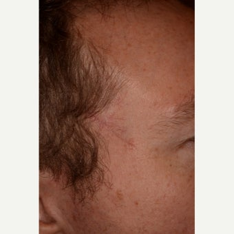 35-44 year old man treated with Mohs Surgery after 1693197