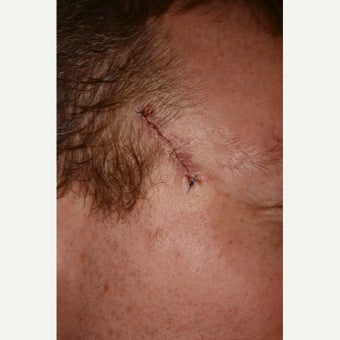 35-44 year old man treated with Mohs Surgery before 1693197