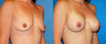 Sientra Breast Implants before 1295075