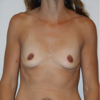 35-44 year old woman treated with Breast Augmentation before 3525796