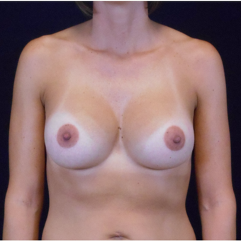 35-44 year old woman treated with Breast Augmentation after 3525796