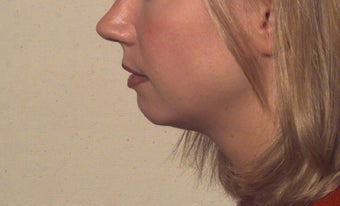 Chin implant before 110759