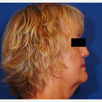 55-64 year old woman treated with Facelift before 3619266