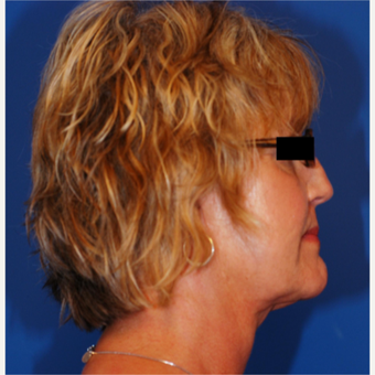 55-64 year old woman treated with Facelift after 3619266