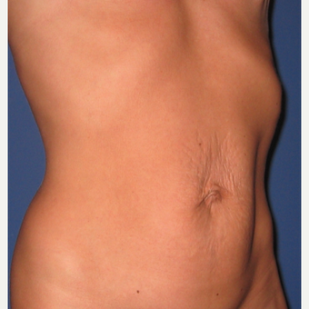 35-44 year old woman treated with Tummy Tuck before 3619102