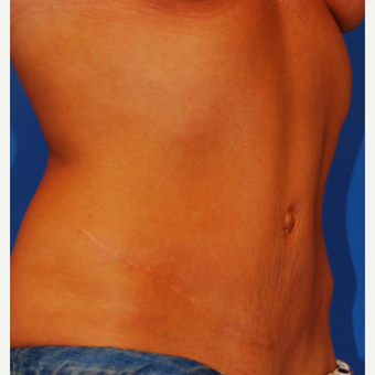 35-44 year old woman treated with Tummy Tuck after 3619102