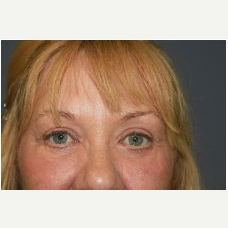 55-64 year old woman treated with Eyelid Surgery after 3076066