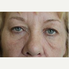 55-64 year old woman treated with Eyelid Surgery before 3076066