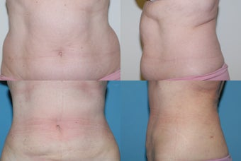 Smartlipo  love handles after 409087