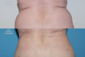 Smartlipo  love handles before 409087