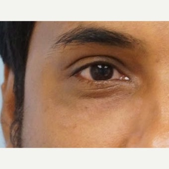 18-24 year old man treated with dark circles
