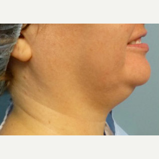 35-44 year old woman treated with Liposuction before 2976028