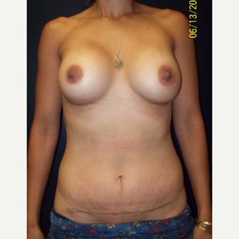 35 year old woman treated with Mommy Makeover after 3201680