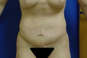 35-44 year old woman treated with Tummy Tuck after 3293970