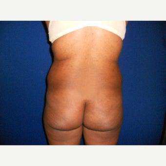 35-44 year old woman treated with Fat Transfer before 1567209