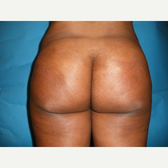 35-44 year old woman treated with Fat Transfer after 1567209