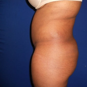 35-44 year old woman treated with Fat Transfer 1567209