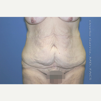 "45-54 year old woman treated with Body Lift-Circumferential ""Belt"" lipectomy + Vaser Liposuction before 3041534"