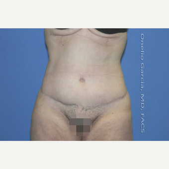"45-54 year old woman treated with Body Lift-Circumferential ""Belt"" lipectomy + Vaser Liposuction after 3041534"