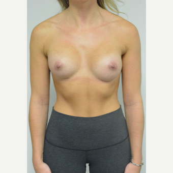 25-34 year old woman treated with Breast Implants who wants a natural look after 3644560
