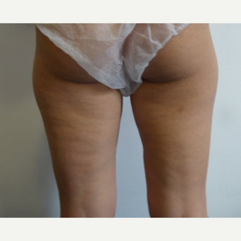 25-34 year old woman treated with Liposculpture before 3501922