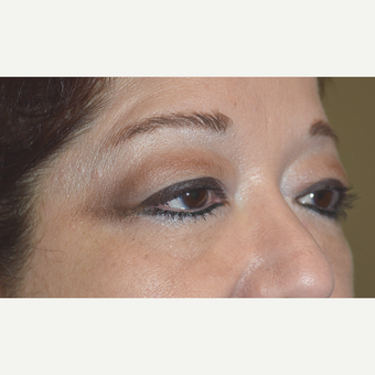 58 year old female, underwent cosmetic upper blepharoplasty, ptosis surgery, and lateral brow lift. before 3090260
