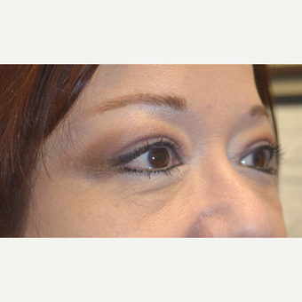 58 year old female, underwent cosmetic upper blepharoplasty, ptosis surgery, and lateral brow lift. after 3090260