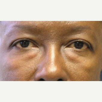 45-54 year old woman treated with Eye Bags Treatment before 1905691