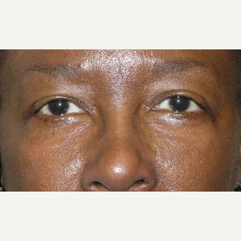 45-54 year old woman treated with Eye Bags Treatment after 1905691