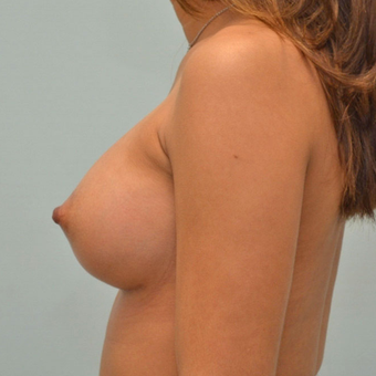 Breast Augmentation with 335cc shaped implants on 5'1, 95 pound patient. after 3176041