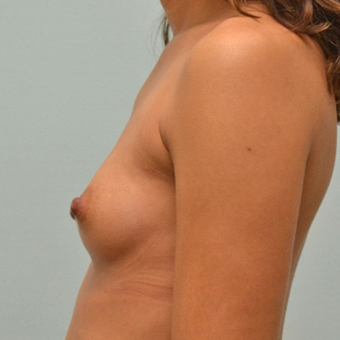 Breast Augmentation with 335cc shaped implants on 5'1, 95 pound patient. before 3176041