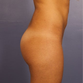 Brazilian Butt Lift, Mid 20s female Mid 20s female treated with Brazilian Butt Lift