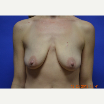 25-34 year old woman treated with Breast Lift with Implants before 3611196