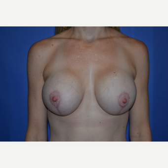 25-34 year old woman treated with Breast Lift with Implants after 3611196