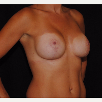 25-34 year old woman treated with Breast Lift with Implants after 3300355