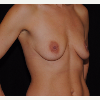 25-34 year old woman treated with Breast Lift with Implants before 3300355