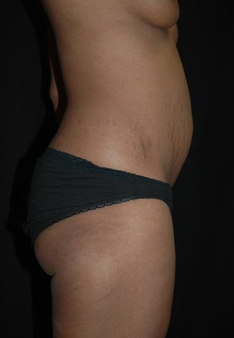 Abdominoplasty/Tummy Tuck before 653448