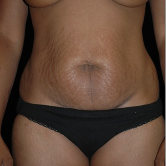 Abdominoplasty/Tummy Tuck 653448
