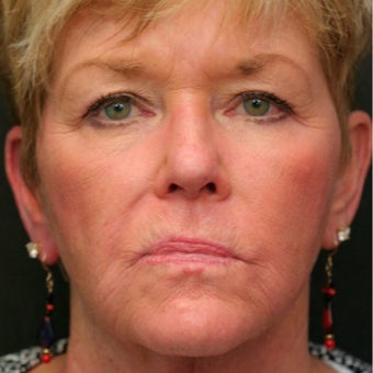 55-64 year old woman treated with Juvederm after 1673891