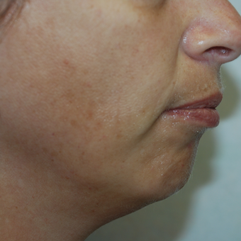 45-54 year old woman treated with Facelift before 3384011