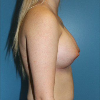 18-24 year old woman treated with Breast Augmentation after 3550375
