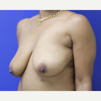 45-54 year old woman treated with Breast Lift before 3653253