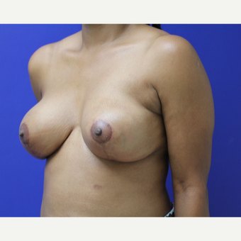 45-54 year old woman treated with Breast Lift after 3653253