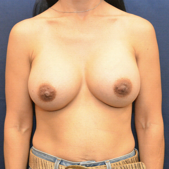 35-44 year old woman treated with Breast Augmentation after 3731285