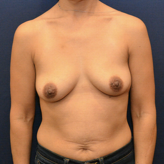 35-44 year old woman treated with Breast Augmentation before 3731285